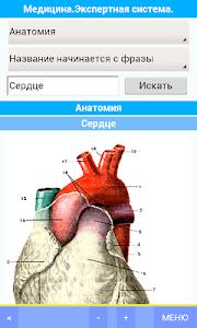 Медицина. Экспертная система. screenshot 0