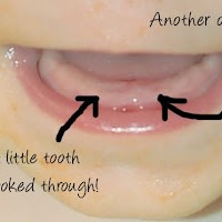 Claire's Teeth!