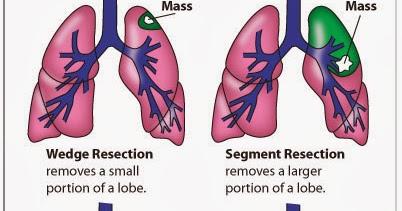 肺實質切除(Lung parenchymal resection) - 小小整理網站 Smallcollation