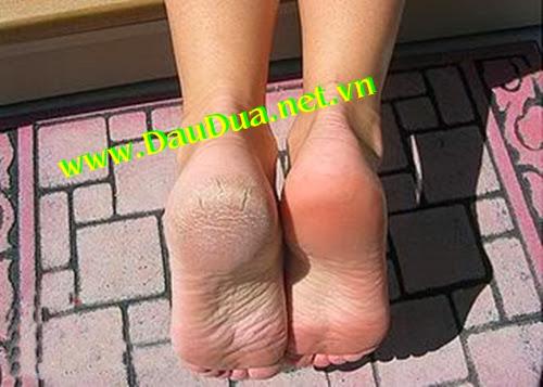 Trị bệnh nứt gót chân hiệu quả bằng tinh dầu dừa