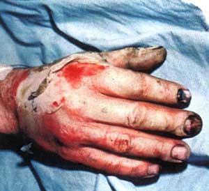 fireworks hand injury burnt