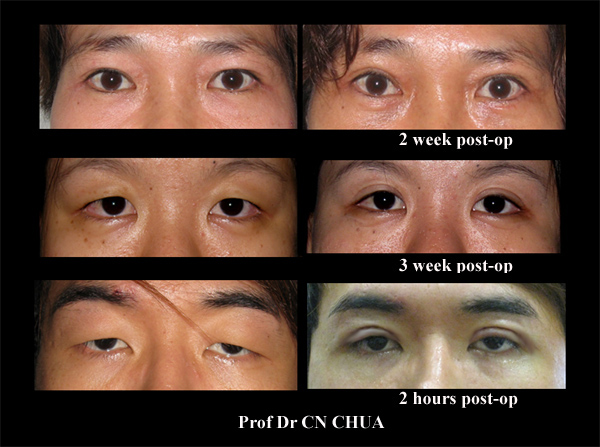 After Eyelid Surgery There Would Be A Period Of Recovery And Patients