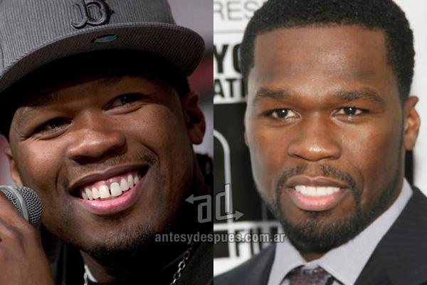 50 Cents y sus nuevos dientes, antes y despues