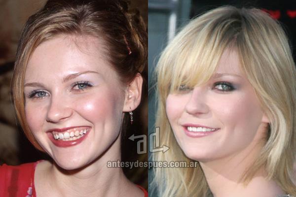 Kirsten Dunst y sus nuevos dientes, antes y despues