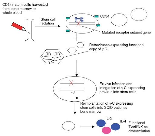 in vivo gene therapy diagram kenmore dryer parts ii viral vectors and treatment modalities genetics stem cell based ex retroviral transduction of functional y c receptor subunit