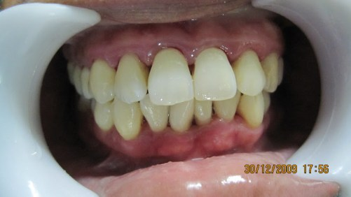 after remove dental calculus