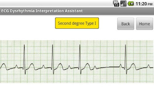 ECG Interpretation Assistant screenshot 1