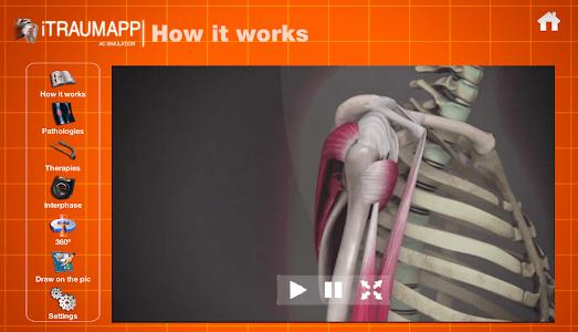 iTraumApp Shoulder Pro screenshot 1