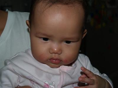 Zaria's rashes clearing