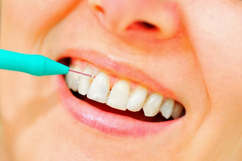 想要一口潔白好牙?你需要3支牙刷 |早安健康