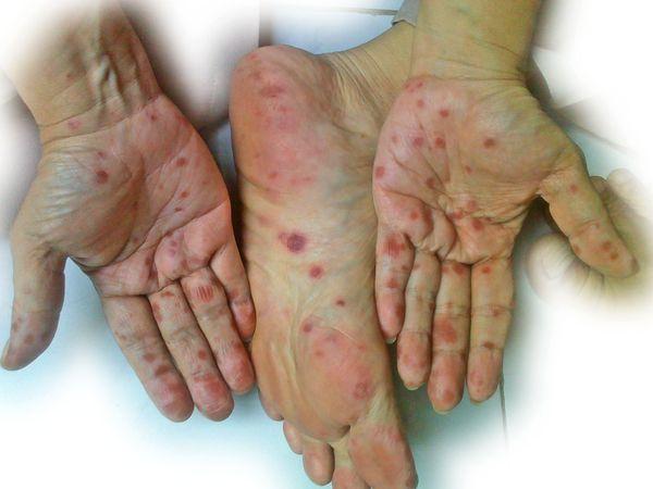 penularan penyakit flu singapura melalui   jelly gamat luxor