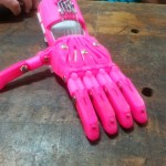 I recently printed a prosthetic hand for a little girl back home, where I grew up....