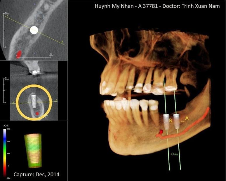 Cấy ghép răng Implant nha khoa Thuận Kiều 2015