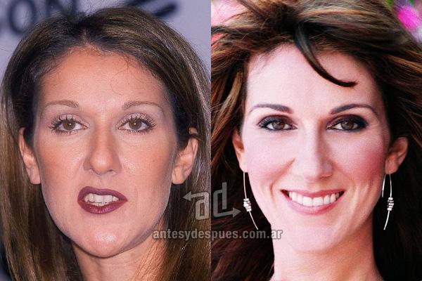 Celine Dion y sus nuevos dientes, antes y despues