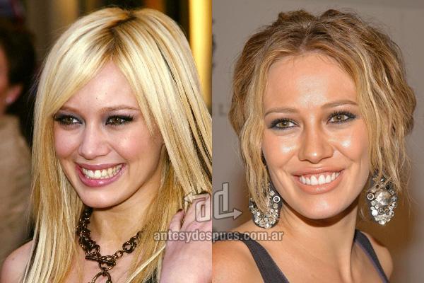 Hilary Duff y sus nuevos dientes, antes y despues