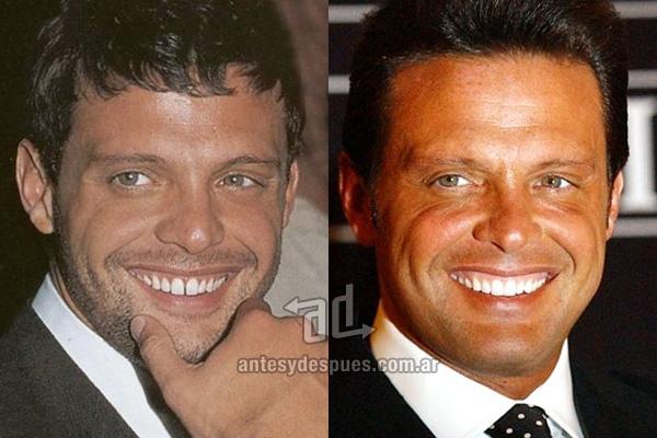 Luis Miguel y sus nuevos dientes, antes y despues