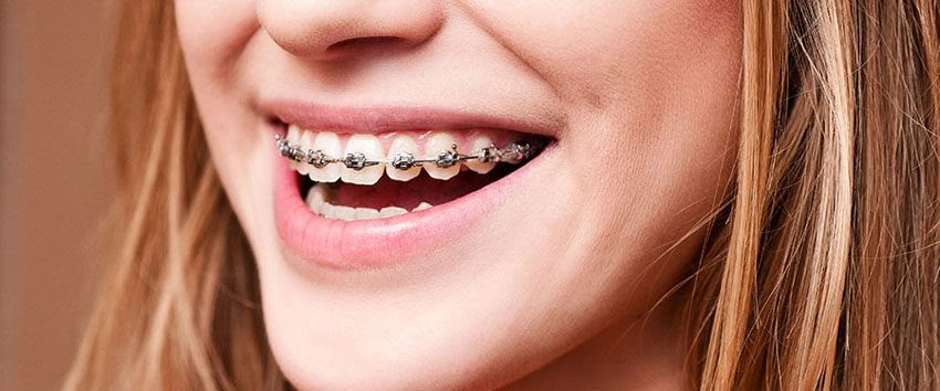 What To Do When Your Teeth Hurt After Braces - TeethWalls