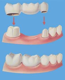 Biaya Pasang Gigi Palsu : biaya, pasang, palsu, Biaya, Pemasangan, Crown, Puskesmas, Stream