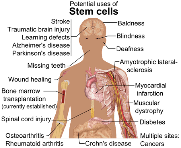 Stem_cell_treatments