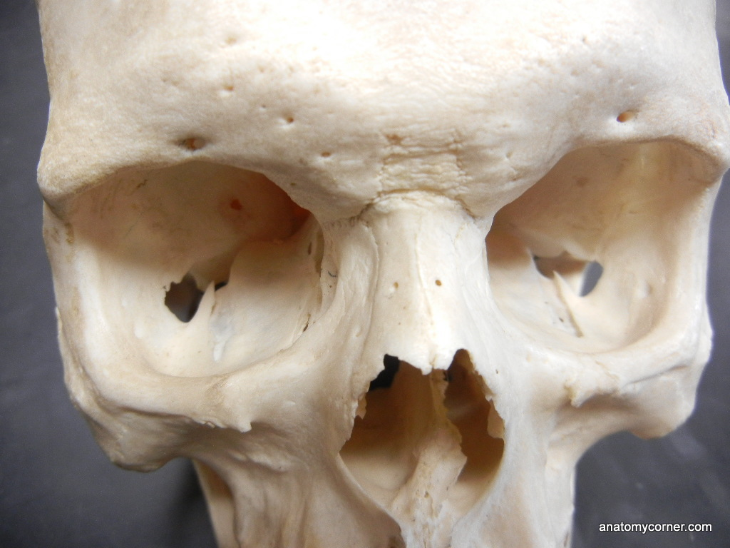 Zygomatic Unlabeled