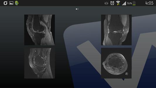 ViewRex Mobile screenshot 2