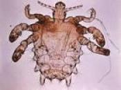 pubic louse