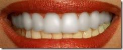 dientes9