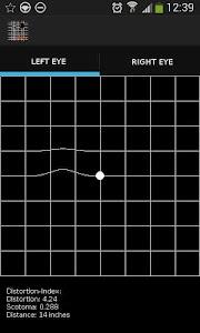 AMD Pro, A Metamorphopsia Det. screenshot 0
