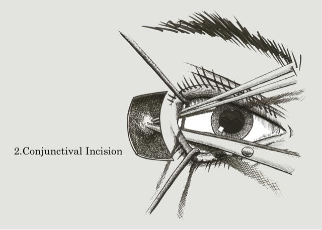 Drawing: Mechanical Eye Ball