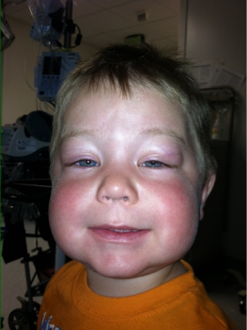 His poor little face so swollen from the allergic reaction.