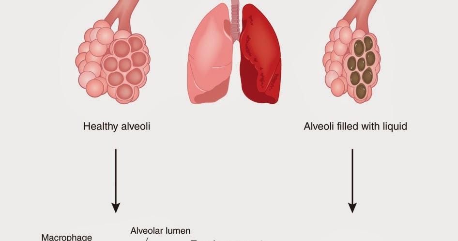 肺的順應性(Lung Compliance) - 小小整理網站 Smallcollation