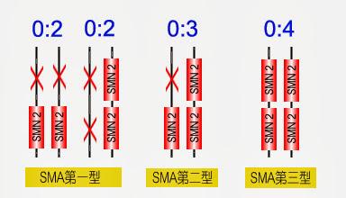 脊髓性肌萎縮癥(Spinal muscular atrophy, SMA) - 小小整理網站 Smallcollation