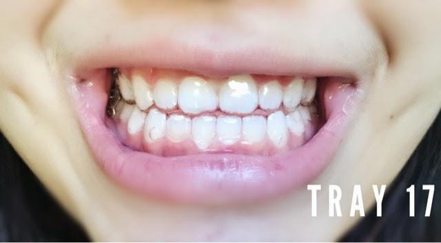 Invisalign Tray 17 (Update #10) - Simone Tsui