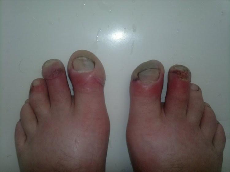 odmrożone stopy Krzyśka Drożdżyńskiego