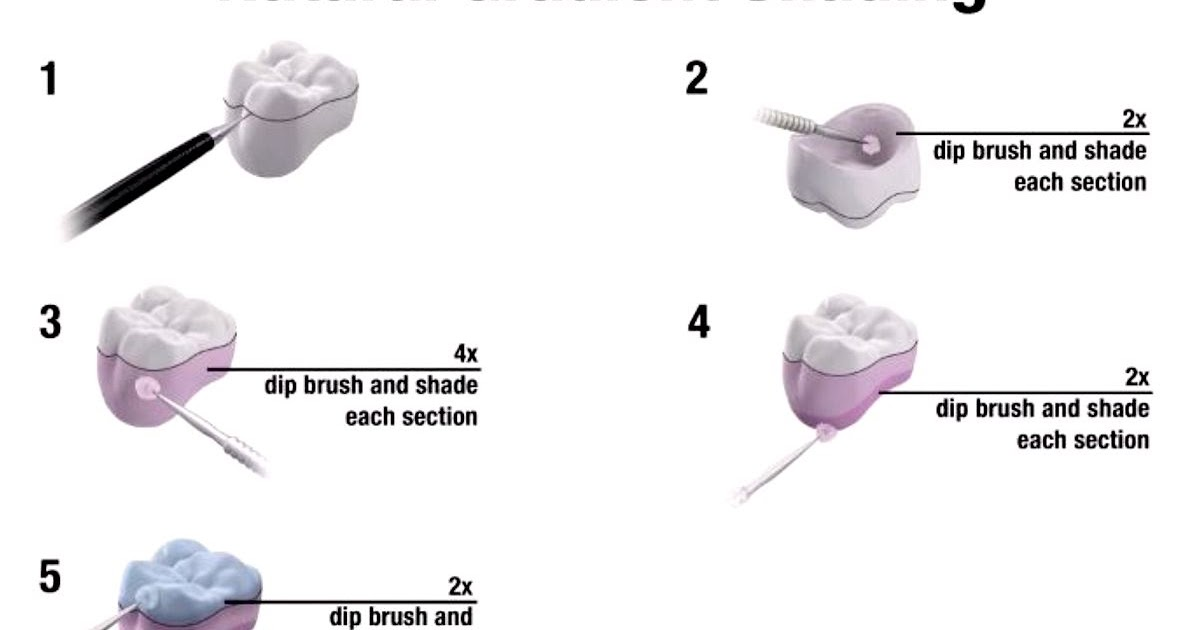 PROSTHODONTICS: Two Shading Options for Lava Plus
