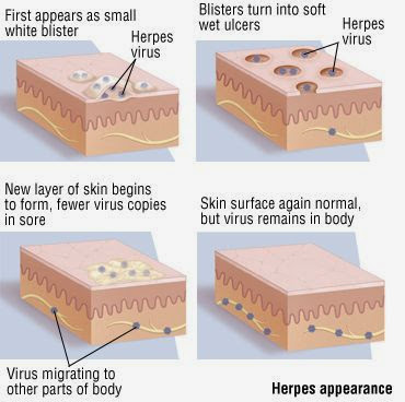 Do I Have Genital Herpes? Is It Puberty? Im Soo Scared: ( Plz Answer? 2