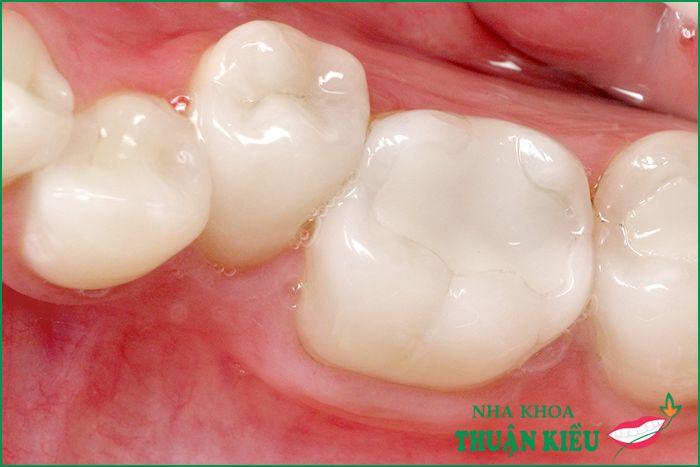 Khi nào cần trám răng và vật liệu trám răng nào tốt nhất