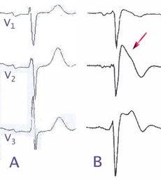 MRCP revision: Brugada syndrome