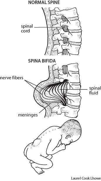 Mr.Daddy Poko Adventures: What is Spina Bifida