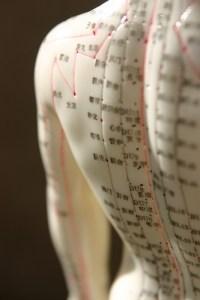 acupuncture model 1