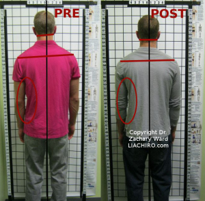 Before and after sciatica posture changes