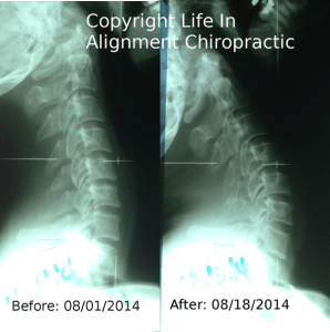 Extension Lateral X Ray Life In Alignment Chiropractic