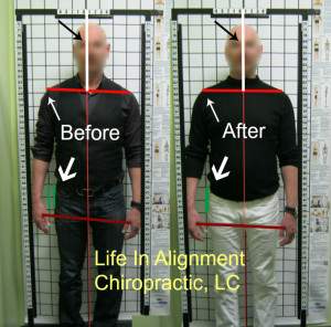 Pudendal Nerve Pain and Upper Cerviacal Chiropractic Before and After Posture