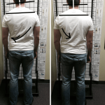 Before and after measurement at Life In Alignment Chiropractic.