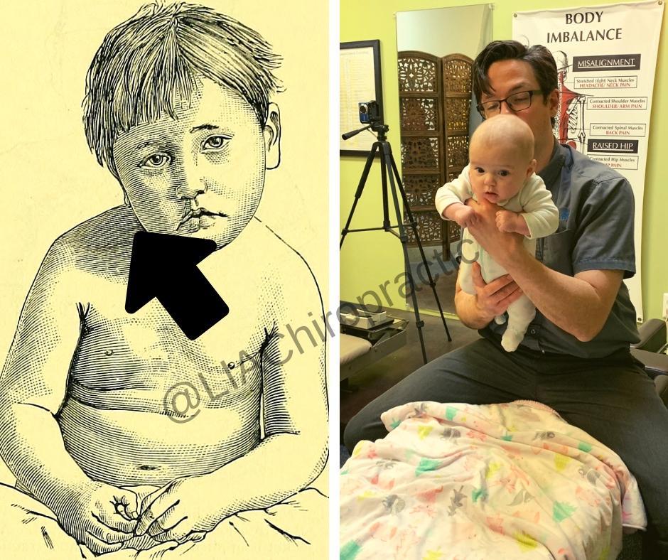 Upper cervical chiropractic and torticollis (congenital)?