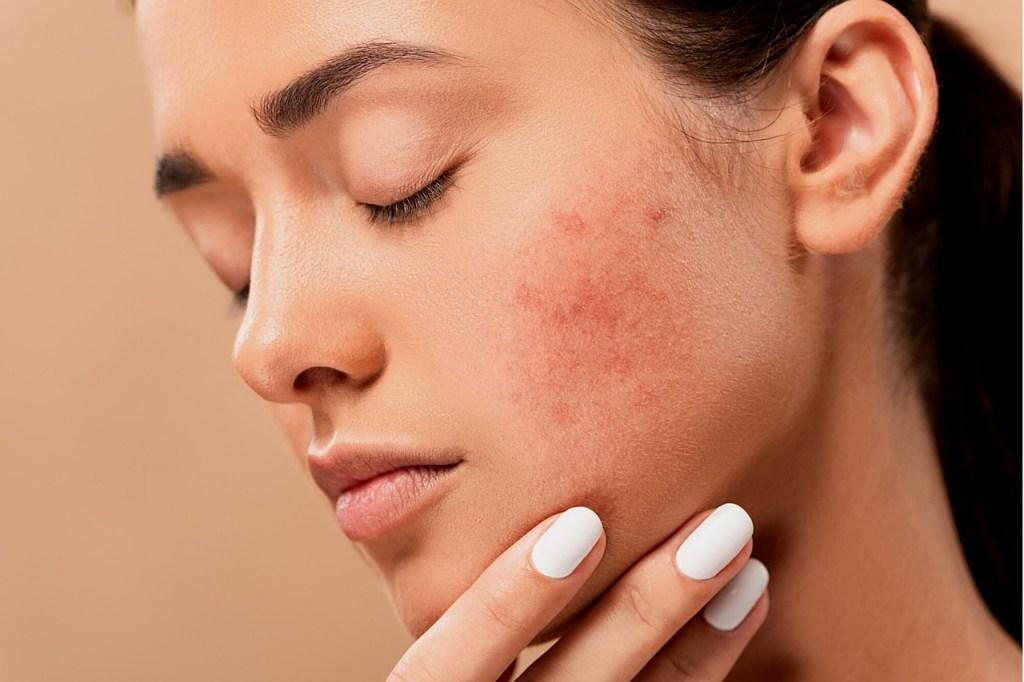 acne, pimples, spots-5561750.jpg