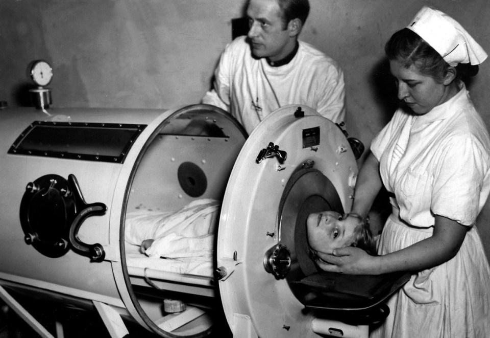 Vastüdő. Magyarországon 2005-ben cserélték le az utolsó, 60 éves, akkor már muzeális értékű vastüdőt, amelyben egy légzésbénult beteget tartottak életben