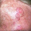 There are many other pre malignant skin lesions but it would be up to