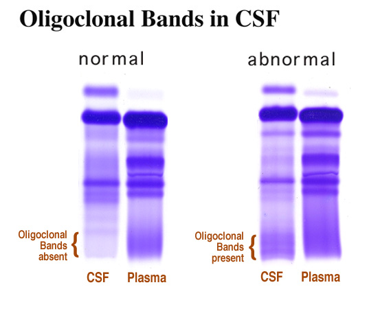 Multiple Sclerosis Oligoclonal Bands In Csf In A Patient