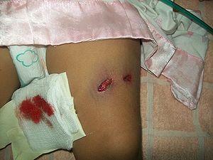 Gunshot wounds - Libre Pathology